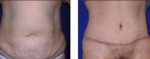 Tummy Tuck Photos