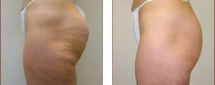 VelaShape Photos